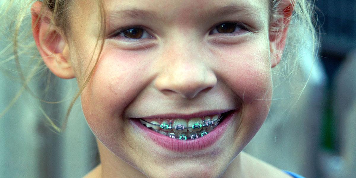 Orthodontic Photo
